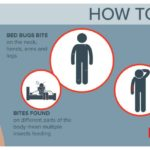 How To Get Bed Bugs Off Your Body?
