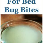 Ways To Get Rid Of Bed Bug Bites.
