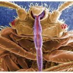 How To Get Rid Of Bed Bugs In Your Home Naturally?
