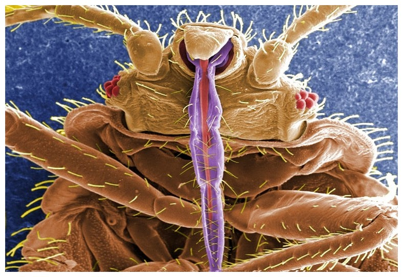 How To Get Rid Of Bed Bugs In Your Home Naturally