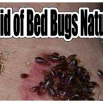 What Kills Bed Bugs Naturally?