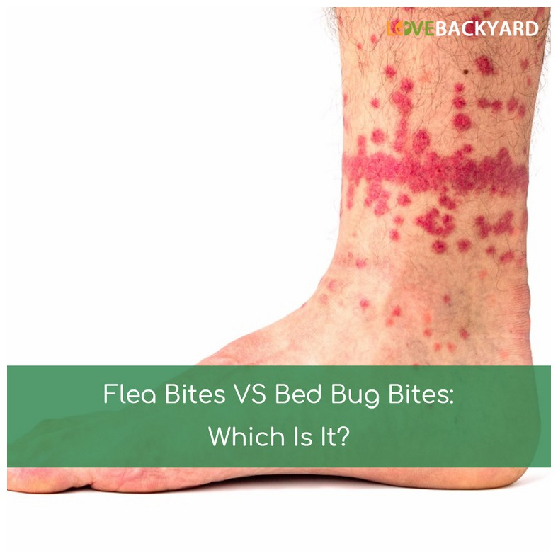 How Do You Treat Bed Bug Bites On Skin