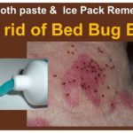 How To Get Rid Of Bed Bugs Under Skin?