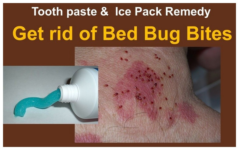 How To Get Rid Of Bed Bugs Under Skin