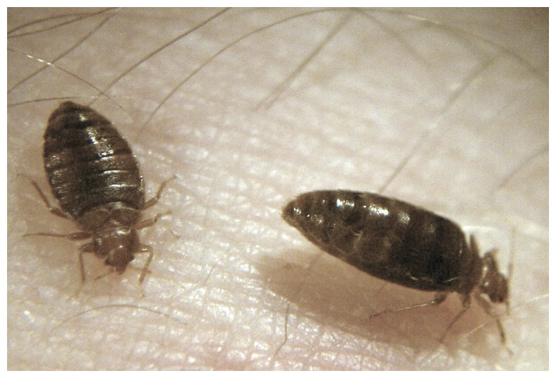 How To Prevent Bed Bug Itching