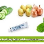 What Oils Are Good For Bed Bugs?